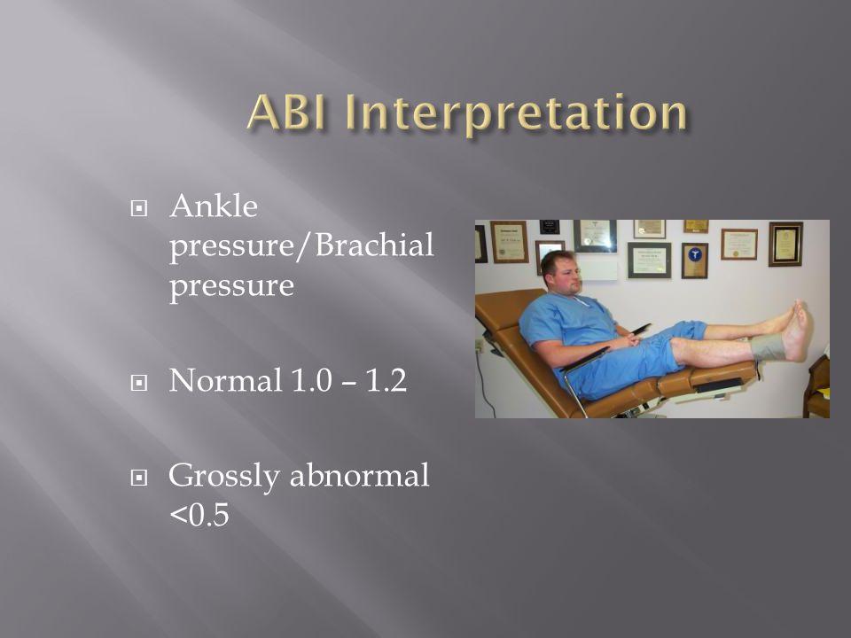 Ankle pressure/Brachial pressure Normal 1.0 – 1.2 Grossly abnormal <0.5