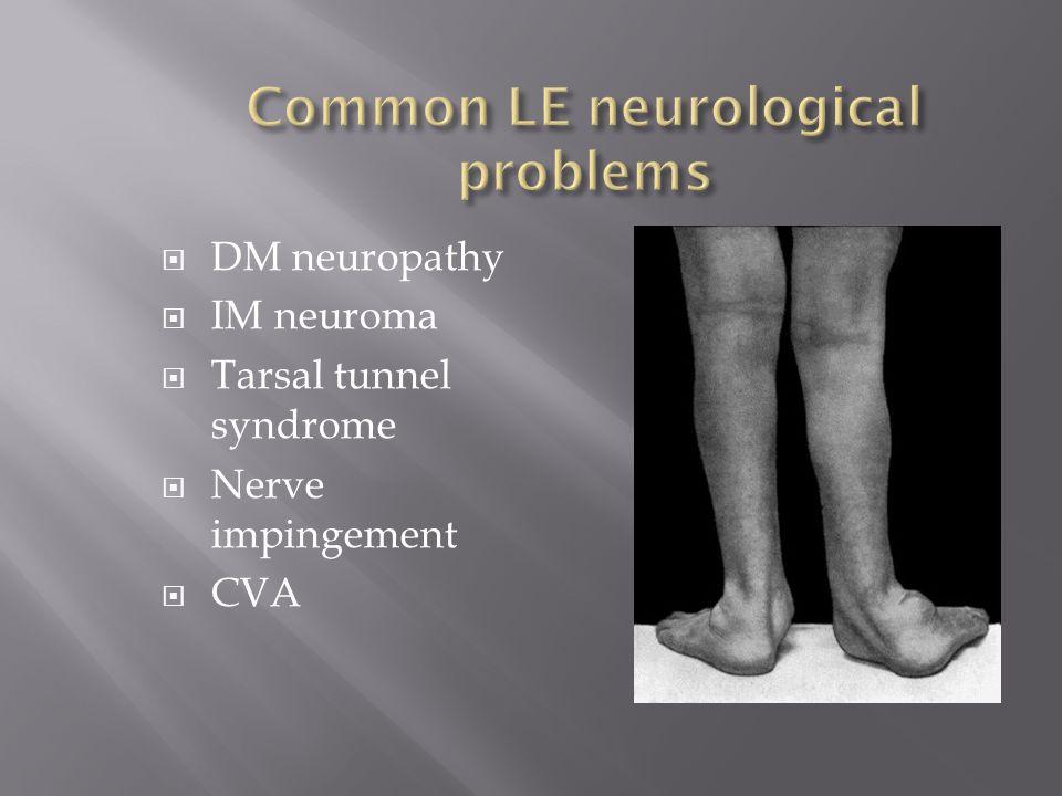 DM neuropathy IM neuroma Tarsal tunnel syndrome Nerve impingement CVA
