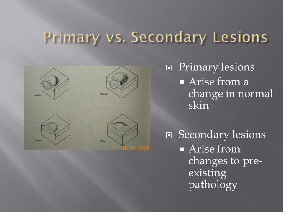 Primary lesions Arise from a change in normal skin Secondary lesions Arise from changes to pre- existing pathology