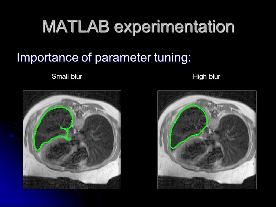 MATLAB experimentation Importance of parameter tuning: Small blurHigh blur
