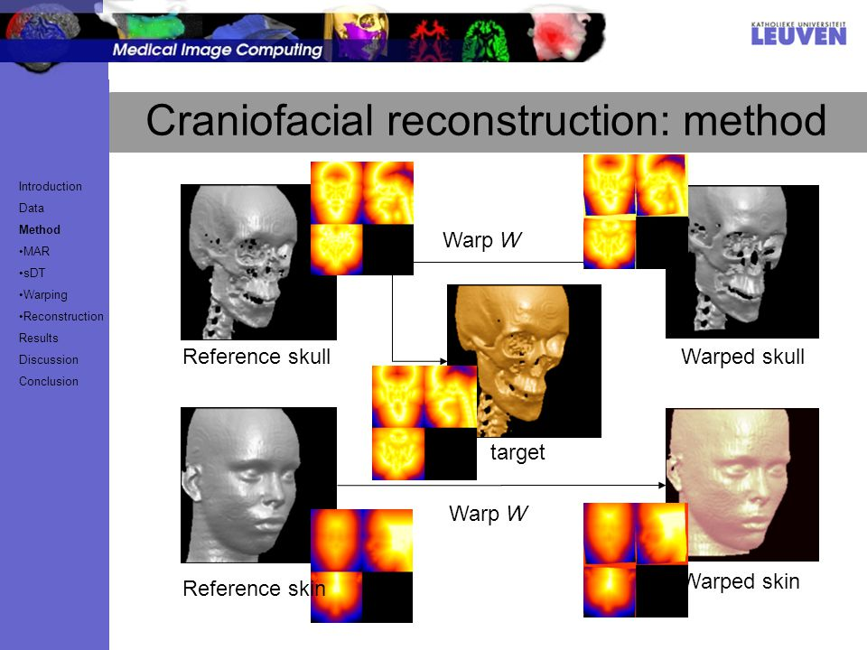 Craniofacial reconstruction: method Warp W target Reference skullWarped skull Warp W Reference skin Warped skin Introduction Data Method MAR sDT Warping Reconstruction Results Discussion Conclusion