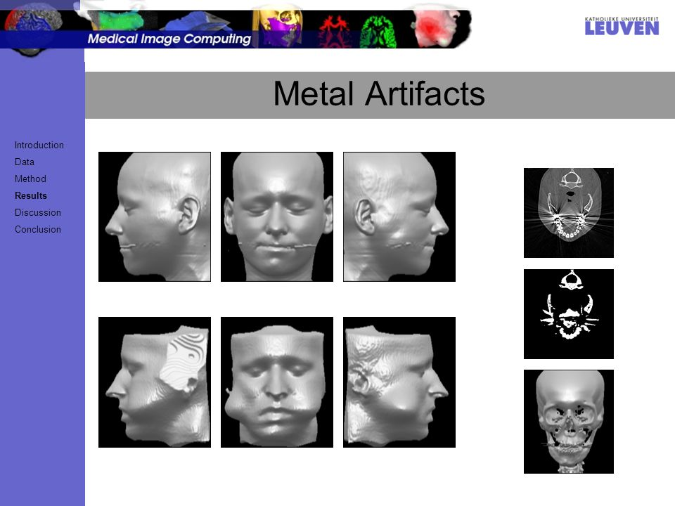 Metal Artifacts Introduction Data Method Results Discussion Conclusion