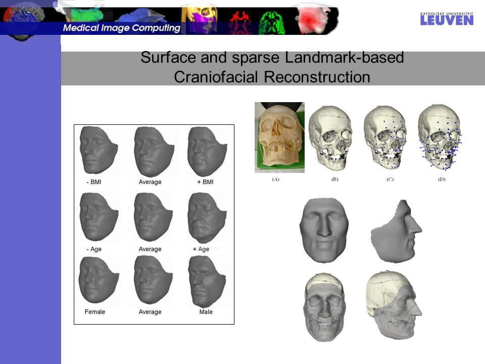 Surface and sparse Landmark-based Craniofacial Reconstruction