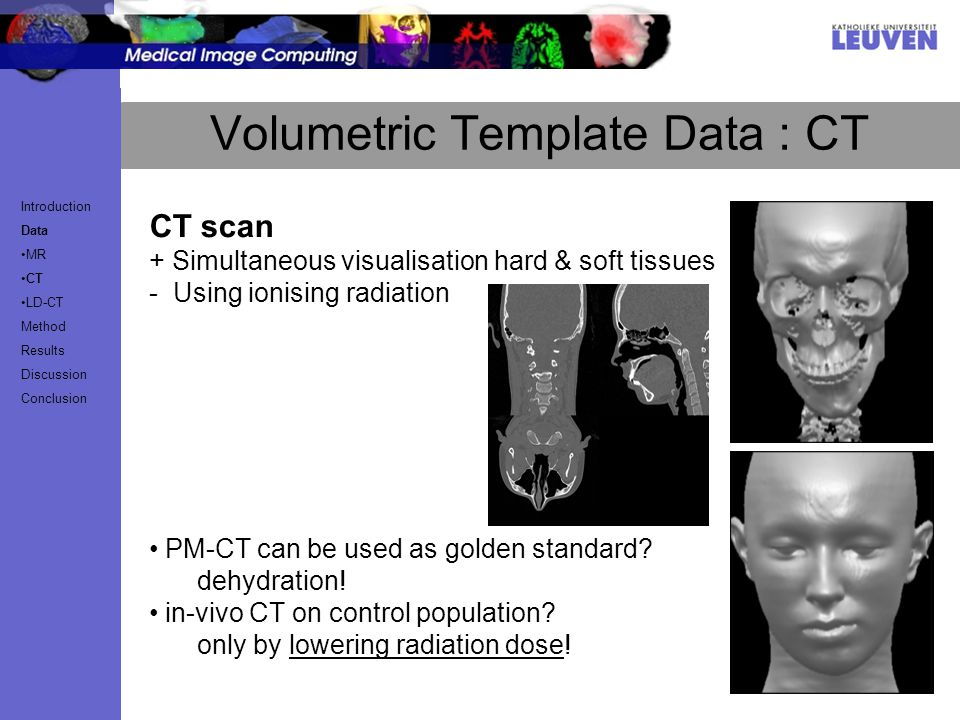 CT scan + Simultaneous visualisation hard & soft tissues - Using ionising radiation PM-CT can be used as golden standard.