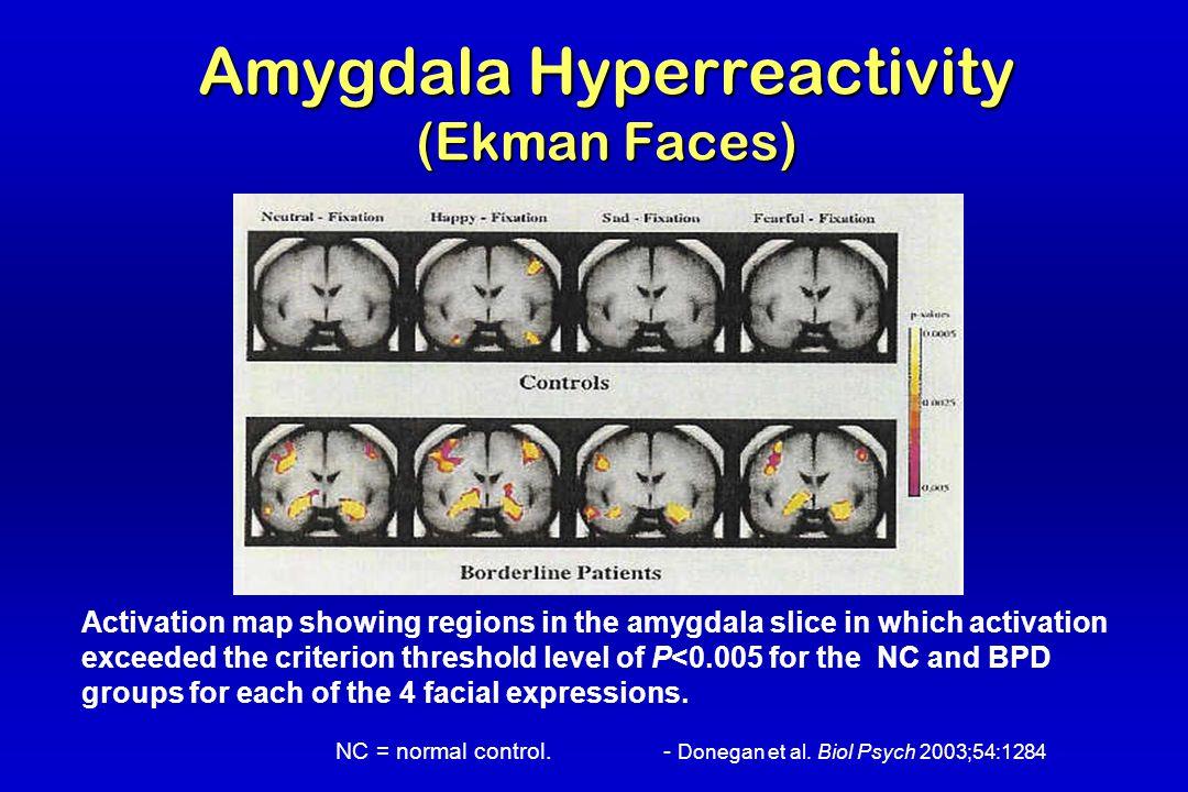 Amygdala Hyperreactivity (Ekman Faces) NC = normal control.