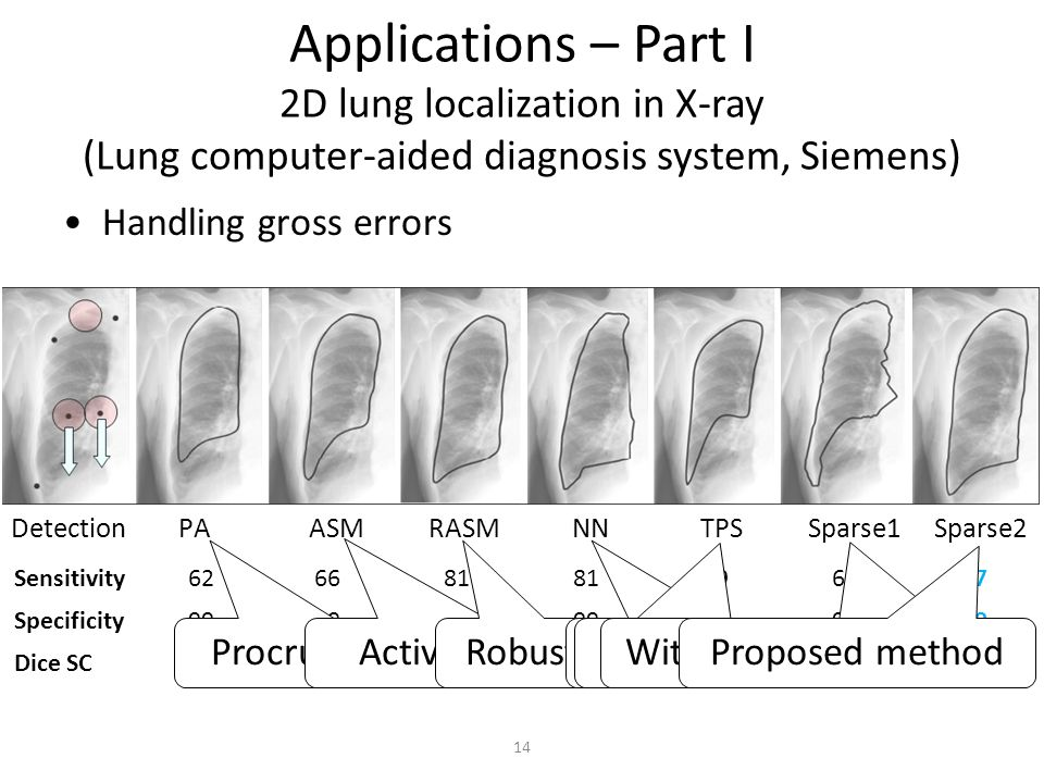 Applications – Part I 2D lung localization in X-ray (Lung computer-aided diagnosis system, Siemens) Handling gross errors Detection PA ASM RASM NN TPS