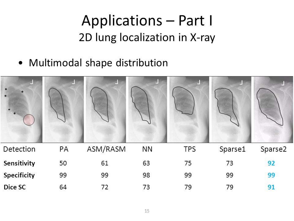 Applications – Part I 2D lung localization in X-ray Multimodal shape distribution Detection PA ASM/RASM NN TPS Sparse1 Sparse2 15