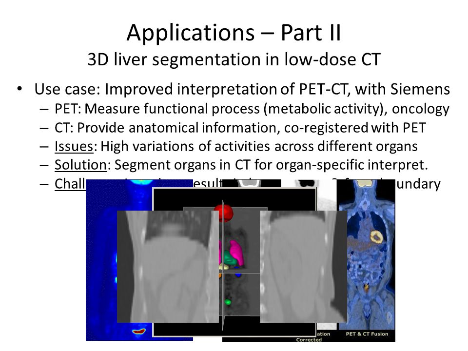 Applications – Part II 3D liver segmentation in low-dose CT 19 Use case: Improved interpretation of PET-CT, with Siemens – PET: Measure functional process (metabolic activity), oncology – CT: Provide anatomical information, co-registered with PET – Issues: High variations of activities across different organs – Solution: Segment organs in CT for organ-specific interpret.