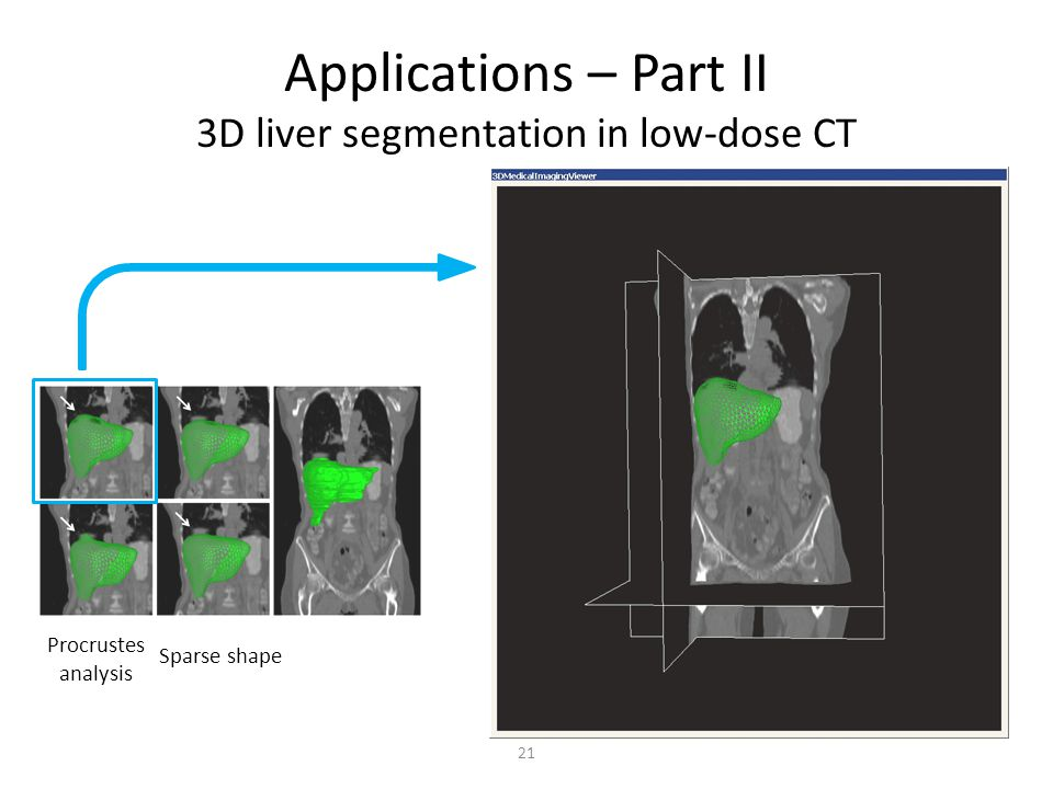 Applications – Part II 3D liver segmentation in low-dose CT Procrustes analysis Sparse shape 21