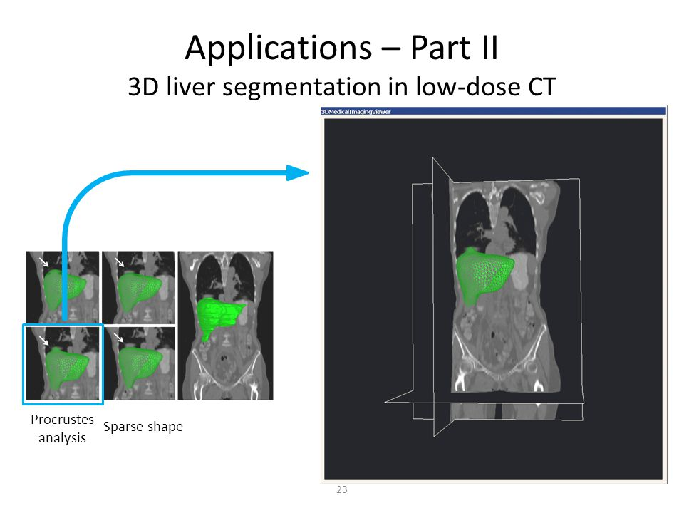 Applications – Part II 3D liver segmentation in low-dose CT Procrustes analysis Sparse shape 23