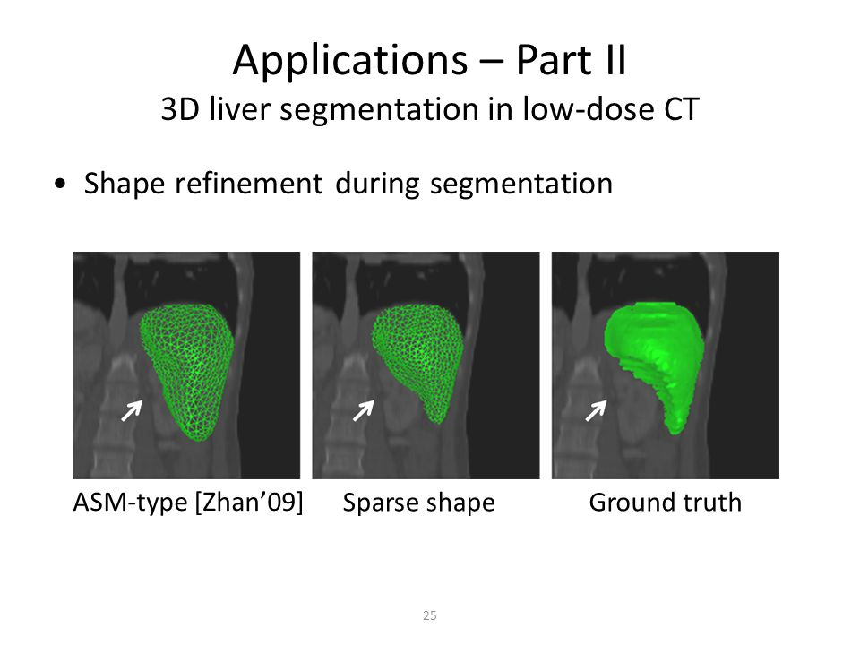 Applications – Part II 3D liver segmentation in low-dose CT ASM-type [Zhan09] Sparse shapeGround truth Shape refinement during segmentation 25