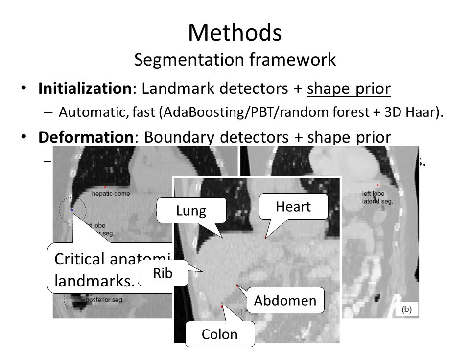 Applications – Part I 2D lung localization in X-ray Mean values and standard deviations.