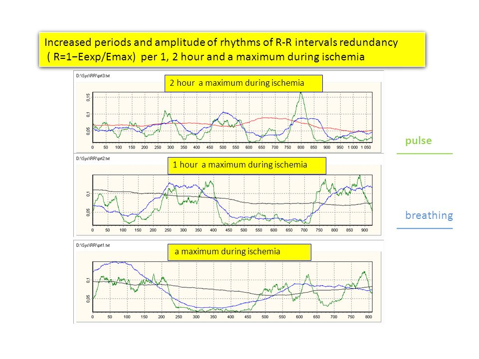 2 hour a maximum during ischemia a maximum during ischemia 1 hour a maximum during ischemia Increased periods and amplitude of rhythms of R-R intervals redundancy ( R=1Eexp/Emax) per 1, 2 hour and a maximum during ischemia Increased periods and amplitude of rhythms of R-R intervals redundancy ( R=1Eexp/Emax) per 1, 2 hour and a maximum during ischemia pulse breathing