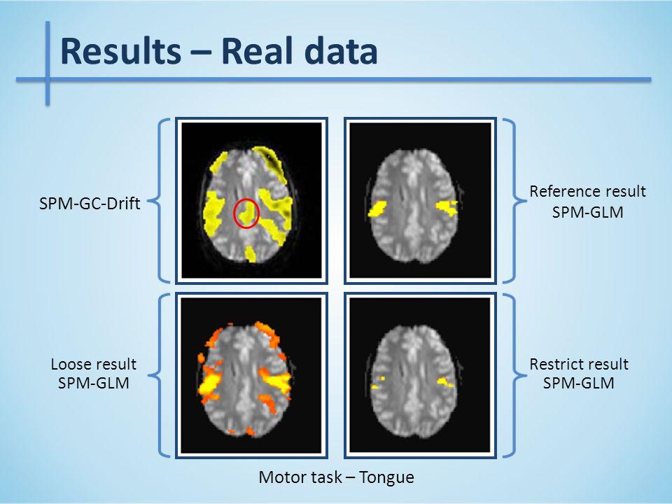 Motor task – Tongue Loose result SPM-GLM Reference result SPM-GLM Restrict result SPM-GLM Results – Real data SPM-GC-Drift