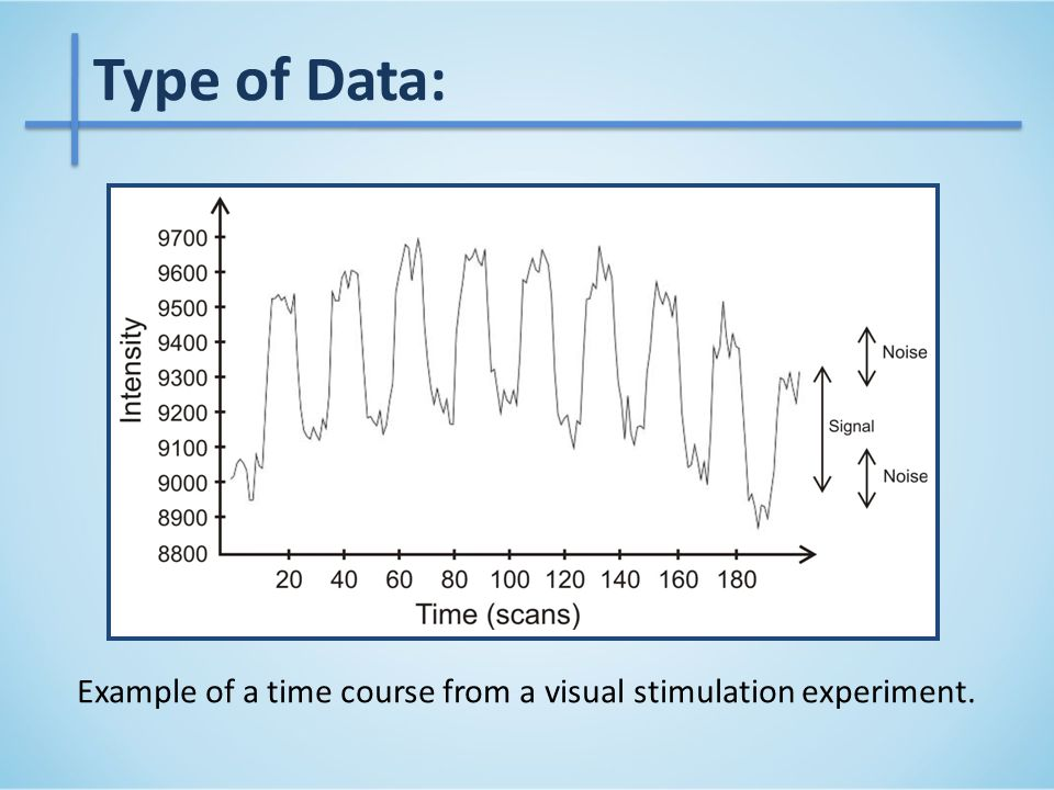 Results – Synthetic data Example of an SNR=2 dB time course with the real and estimated drift.