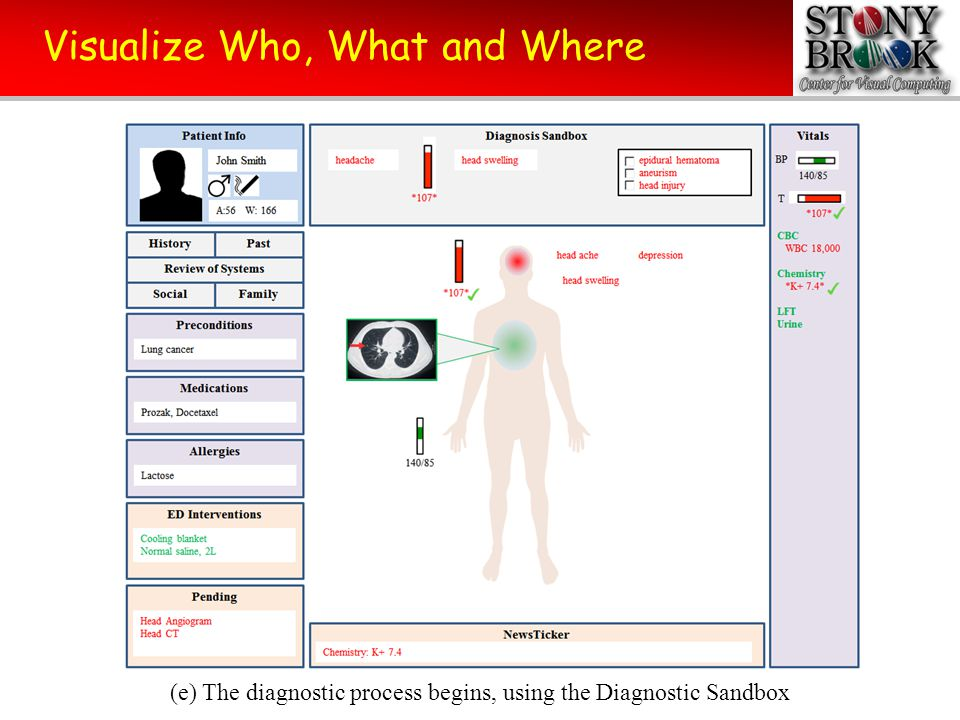 Visualize Who, What and Where (f) The diagnostics determines epidural hematoma