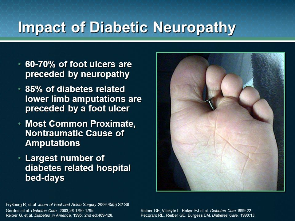Impact of Diabetic Neuropathy 60-70% of foot ulcers are preceded by neuropathy60-70% of foot ulcers are preceded by neuropathy 85% of diabetes related