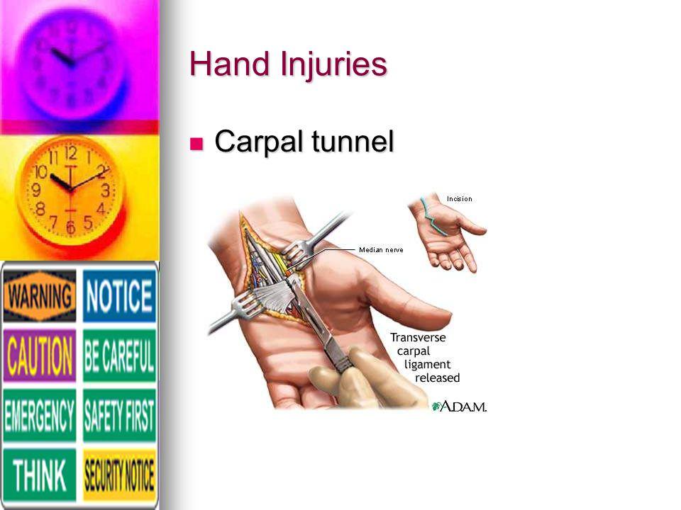 Hand Injuries Carpal tunnel Carpal tunnel