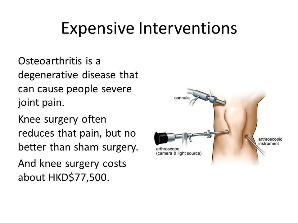 Expensive Interventions Osteoarthritis is a degenerative disease that can cause people severe joint pain.
