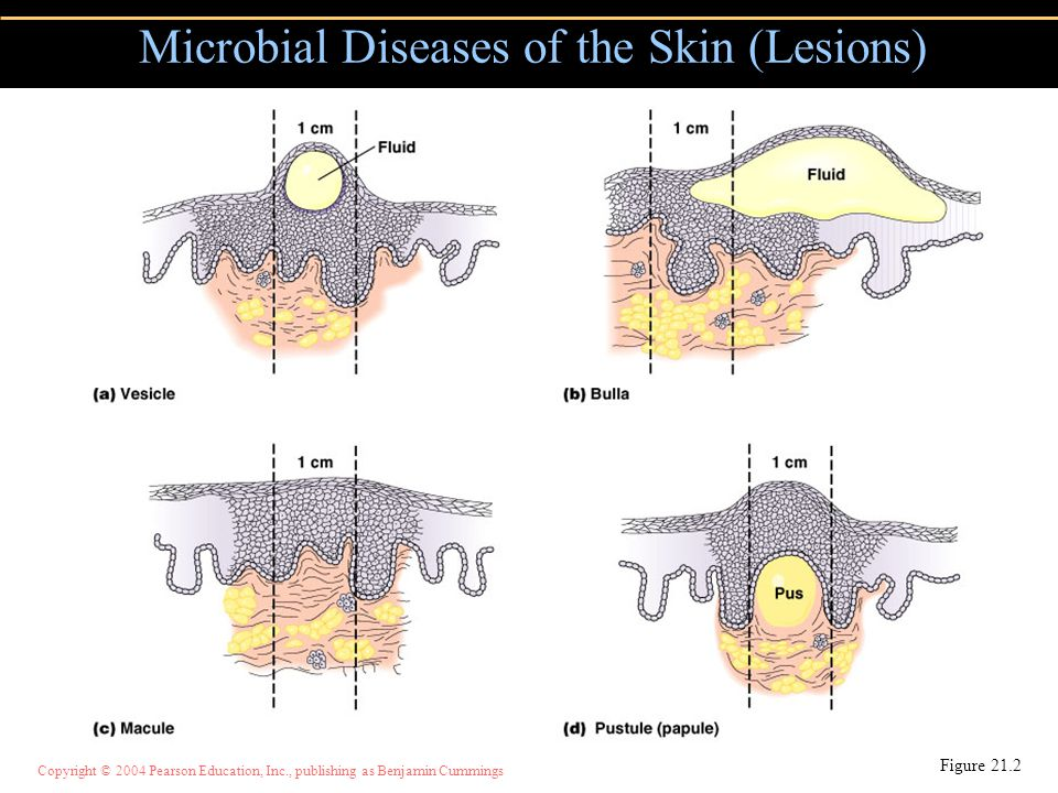 Copyright © 2004 Pearson Education, Inc., publishing as Benjamin Cummings Microbial Diseases of the Skin (Lesions) Figure 21.2