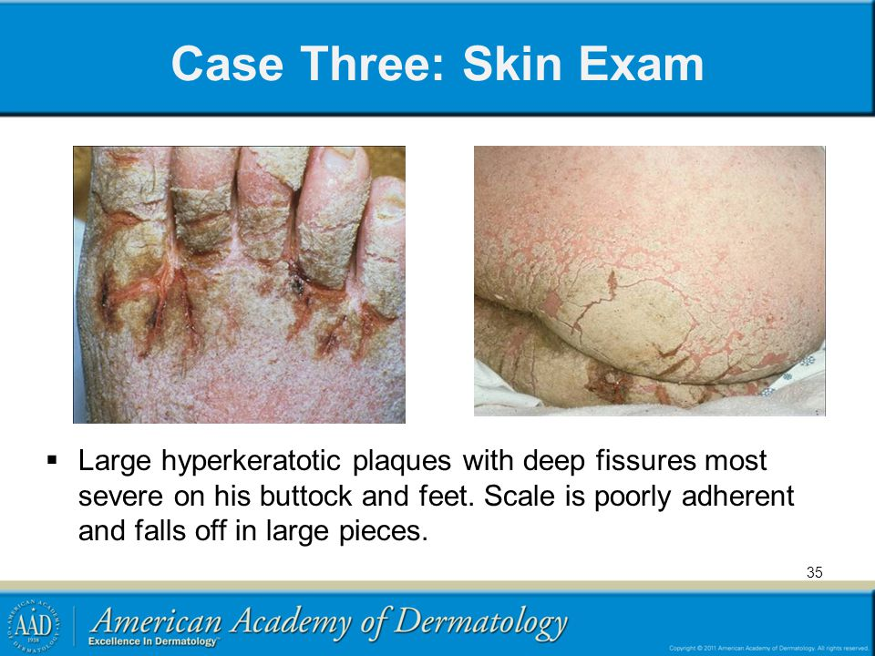 Case Three: Skin Exam Large hyperkeratotic plaques with deep fissures most severe on his buttock and feet.