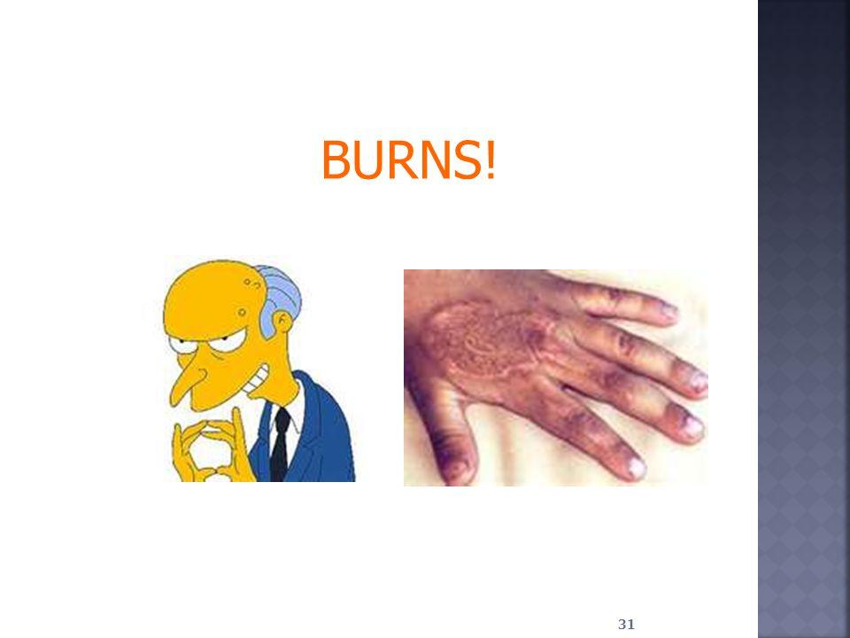 31 BURNS!
