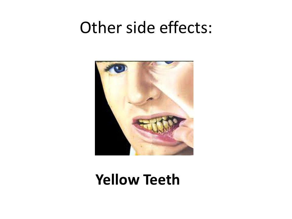 Other side effects: Yellow Teeth
