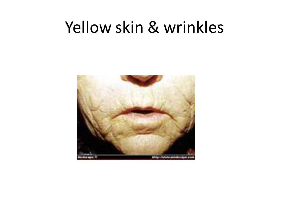 Yellow skin & wrinkles