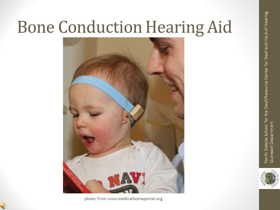 Eligibility Criteria for Cochlear Implant No benefit from hearing aids At least one year of age Family and educational support Absence of medical restrictions Cochlea and auditory nerve are present North Dakota School for the Deaf/Resource Center for Deaf and Hard of Hearing Outreach Department
