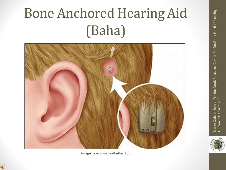 Bone Conduction Hearing Aid photo from www.medicalhomeportal.org North Dakota School for the Deaf/Resource Center for Deaf and Hard of Hearing Outreach Department