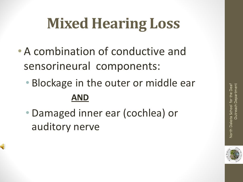 Causes of Sensorineural Hearing Loss Diseases during pregnancy Heredity Childhood diseases (mumps, measles, chicken pox) Viral infections (meningitis, encephalitis) Prolonged high fever Physical damage to head or ear Exposure to excessive or intense noise (loud music, gunfire, etc.) North Dakota School for the Deaf Outreach Department