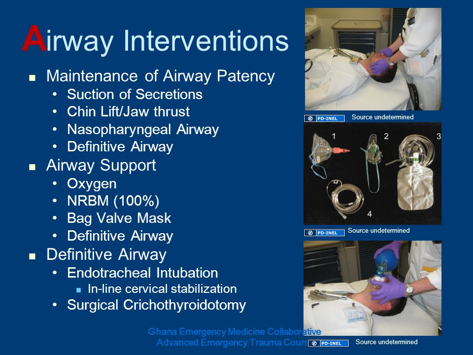 A irway Interventions Maintenance of Airway Patency Suction of Secretions Chin Lift/Jaw thrust Nasopharyngeal Airway Definitive Airway Airway Support