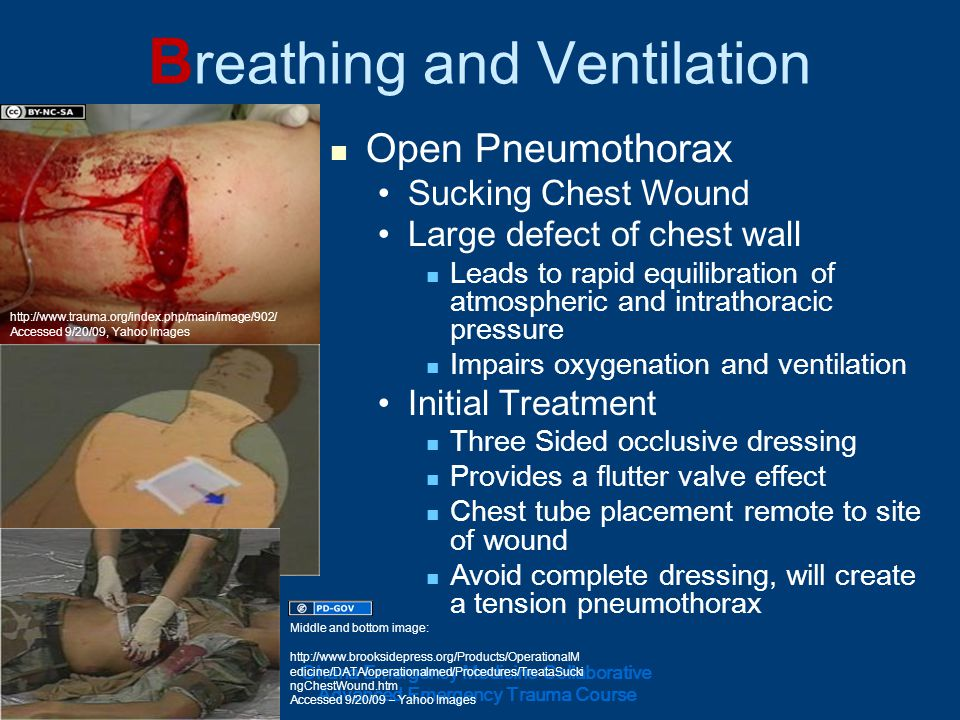 B reathing and Ventilation Open Pneumothorax Sucking Chest Wound Large defect of chest wall Leads to rapid equilibration of atmospheric and intrathora