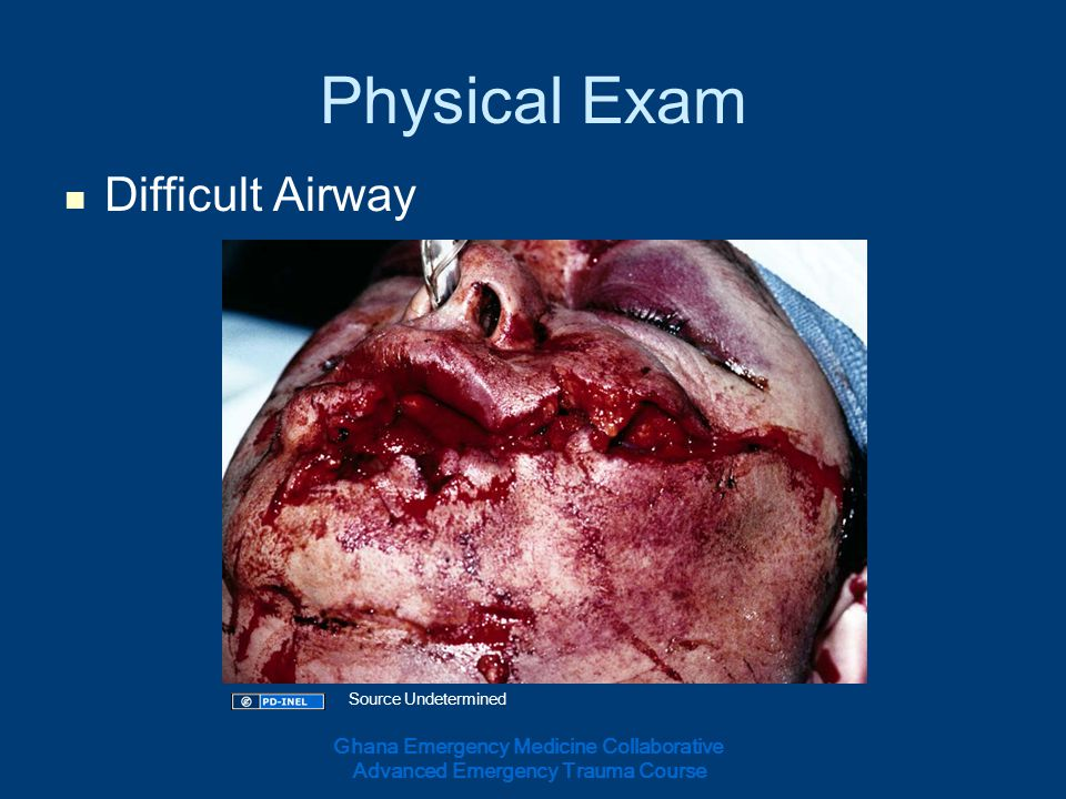 Physical Exam Difficult Airway Ghana Emergency Medicine Collaborative Advanced Emergency Trauma Course Source Undetermined