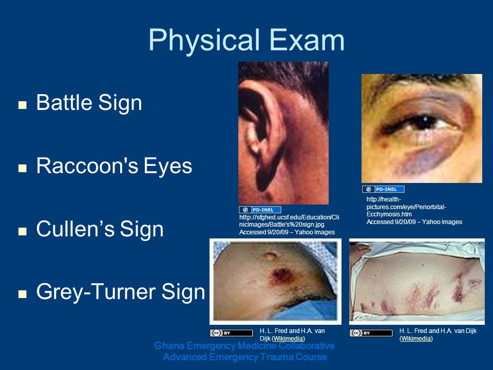 Physical Exam Battle Sign Raccoon's Eyes Cullens Sign Grey-Turner Sign Ghana Emergency Medicine Collaborative Advanced Emergency Trauma Course http://