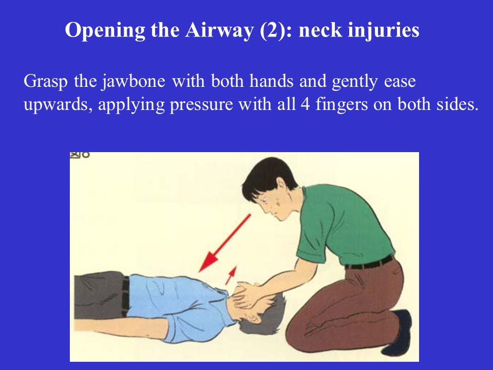 Opening the Airway (2): neck injuries Grasp the jawbone with both hands and gently ease upwards, applying pressure with all 4 fingers on both sides.