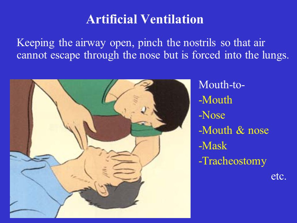 Keeping the airway open, pinch the nostrils so that air cannot escape through the nose but is forced into the lungs. Artificial Ventilation Mouth-to-