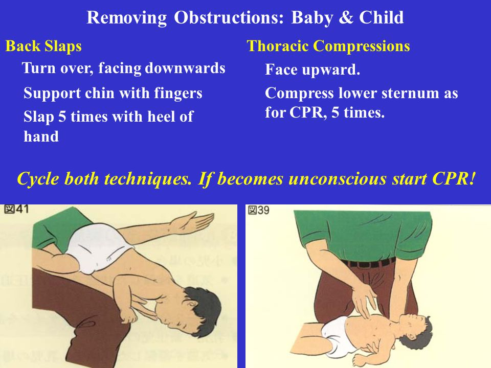 Removing Obstructions: Baby & Child Thoracic Compressions Face upward. Compress lower sternum as for CPR, 5 times. Back Slaps Turn over, facing downwa