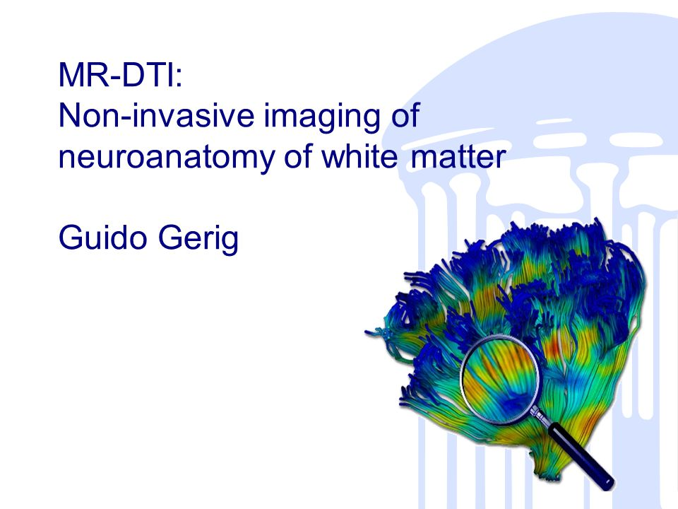 ASNR 2003 –Washington,DC DT-MRI Alexander Diffusion Weighted Images 12 DW encoding directions S i (b=912 sec/mm 2 ) T2W Reference S o (b ~ 0 sec/mm 2 ) Courtesy JE Lee