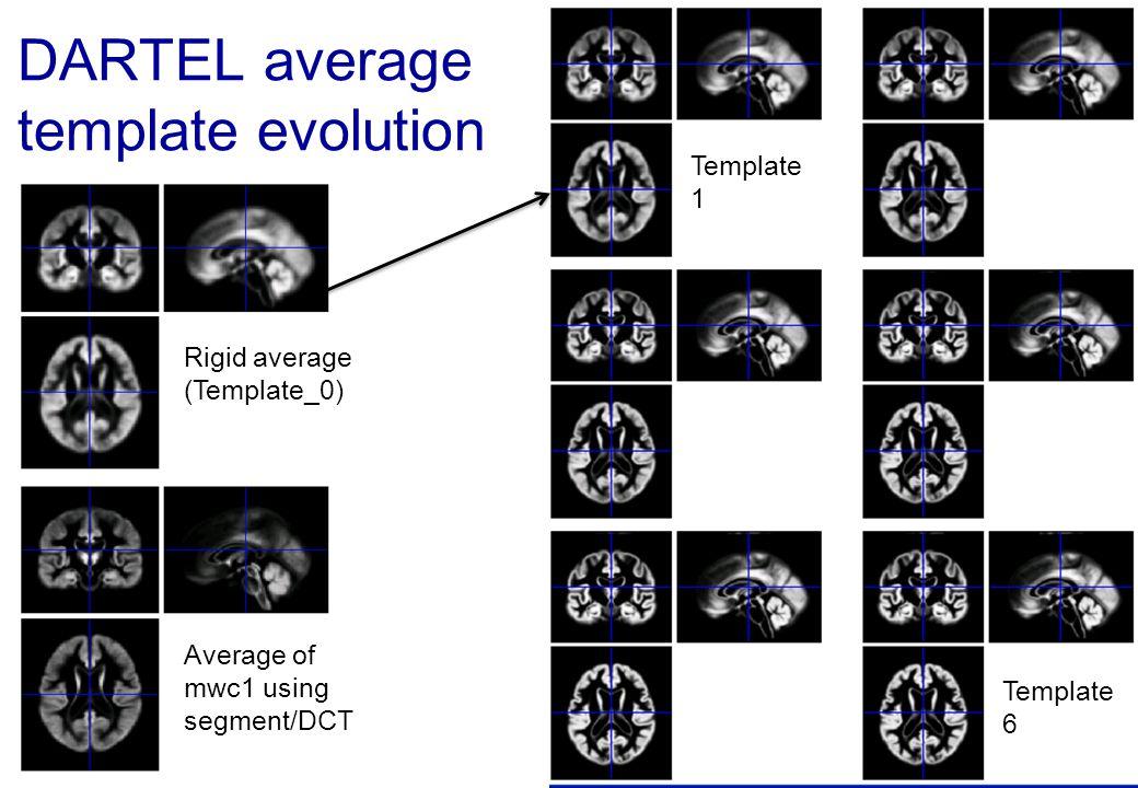 DARTEL average template evolution Rigid average (Template_0) Average of mwc1 using segment/DCT Template 6 Template 1