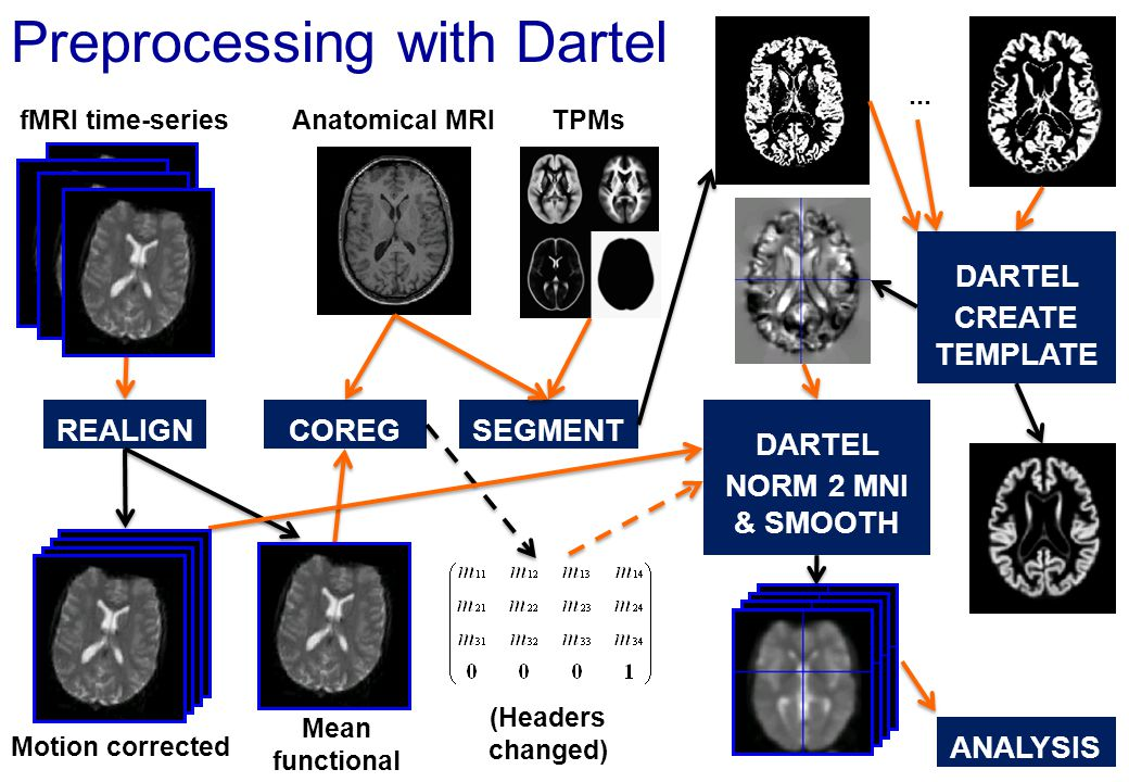 Preprocessing with Dartel fMRI time-series Motion corrected Mean functional REALIGNCOREG Anatomical MRI SEGMENT DARTEL NORM 2 MNI & SMOOTH TPMs (Heade