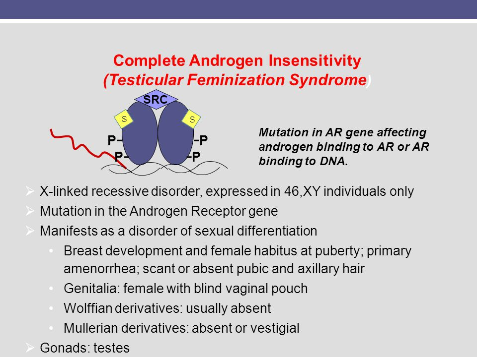 Complete Androgen Insensitivity (Testicular Feminization Syndrome ) X-linked recessive disorder, expressed in 46,XY individuals only Mutation in the A