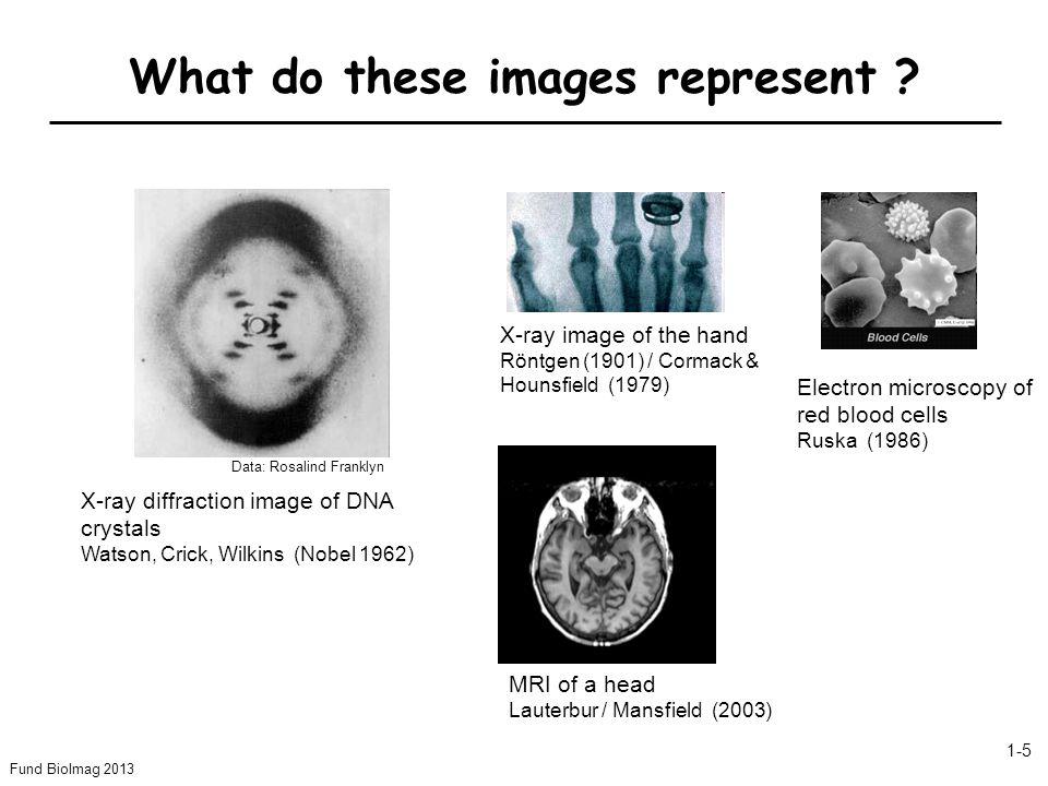 Fund BioImag 2013 1-6 1-2.What is Biomedical Imaging .