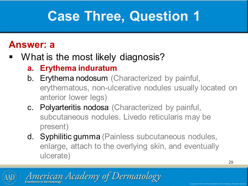 Case Three, Question 1 Answer: a What is the most likely diagnosis? a.Erythema induratum b.Erythema nodosum (Characterized by painful, erythematous, n