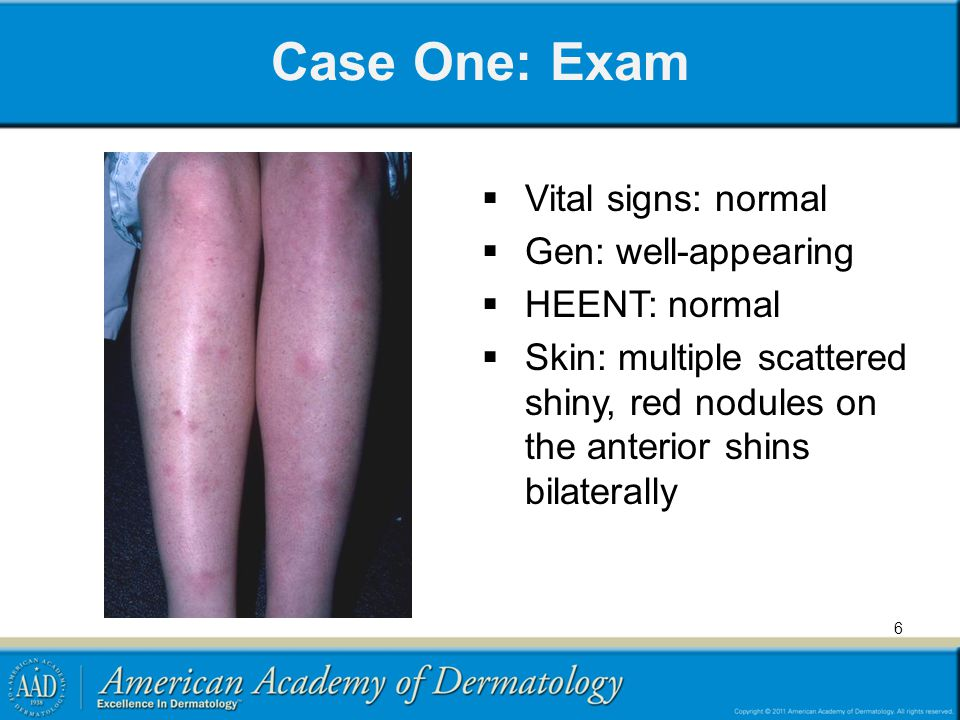 Case One: Exam Vital signs: normal Gen: well-appearing HEENT: normal Skin: multiple scattered shiny, red nodules on the anterior shins bilaterally 6