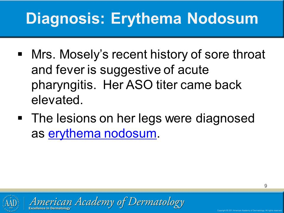 Erythema Nodosum (EN) Characterized by the presence of painful, erythematous, non-ulcerative nodules Often symmetric distribution, located bilaterally below the knees (mainly on the anterior tibial surface) Lesions evolve from bright red to brown-yellow, resembling old ecchymoses Old and new lesions often coexist Patients may also present with fever, fatigue, and arthralgias The morphology of the lesion, a deep nodule, identifies EN as an inflammatory disease of the fat (called a panniculitis) 10