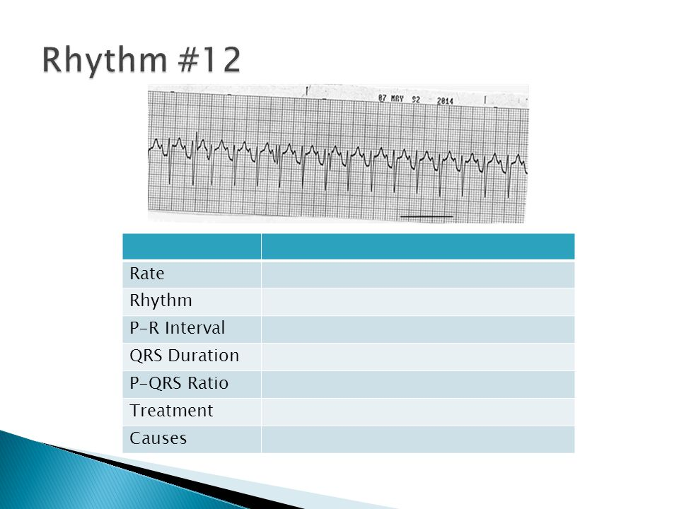Rate Rhythm P-R Interval QRS Duration P-QRS Ratio Treatment Causes