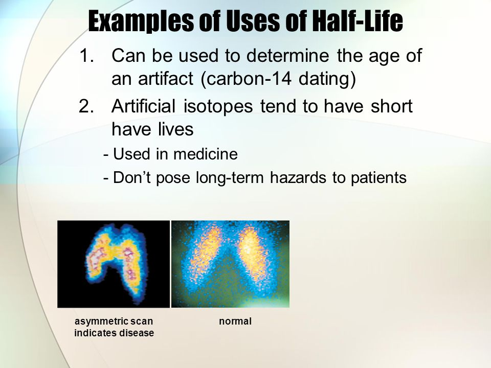 Examples of Uses of Half-Life 1.Can be used to determine the age of an artifact (carbon-14 dating) 2.Artificial isotopes tend to have short have lives - Used in medicine - Dont pose long-term hazards to patients asymmetric scan indicates disease normal