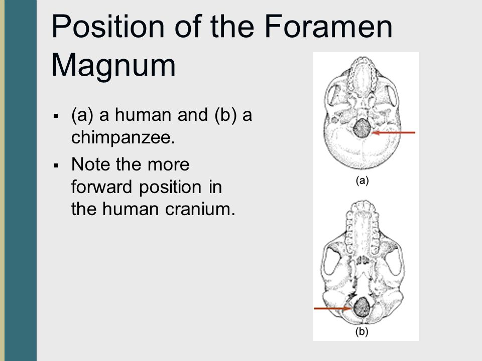 Position of the Foramen Magnum (a) a human and (b) a chimpanzee. Note the more forward position in the human cranium.