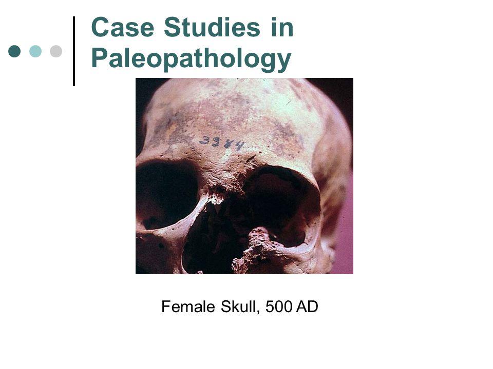 Case Studies in Paleopathology Female Skull, 500 AD
